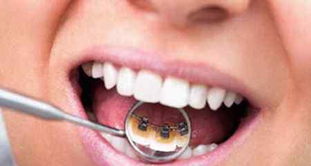 治疗牙周炎的特效药 牙周炎怎么治疗 牙周炎吃什么药好偏方有效吗