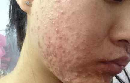 炎症怎么治 激素脸有炎症怎么治疗 推荐激素脸的治疗土方法