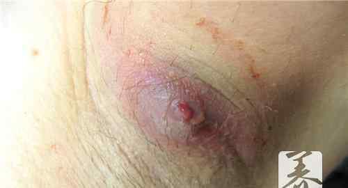 脓肿怎么治 脓肿很常见,它到底是什么引起的?
