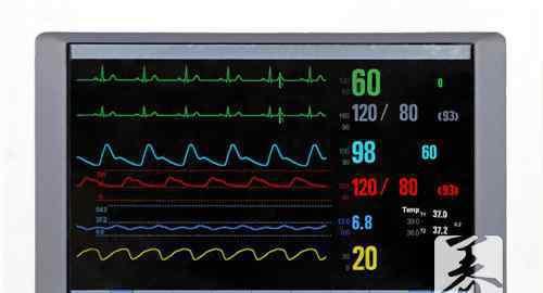 心率低于60说明什么 心率变异性降低的症状