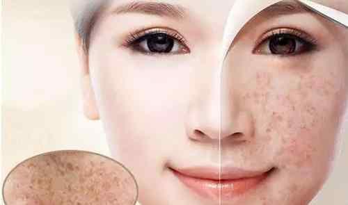 老年斑怎么去除小妙招 老年斑怎样消除?小编分享这些消除老年斑的方法