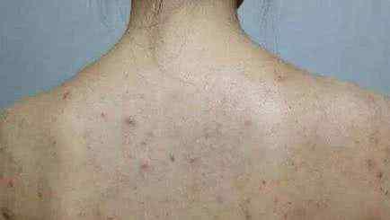 胸前和后背长痘痘是什么原因 前胸后背长痘痘,原因及解决办法!