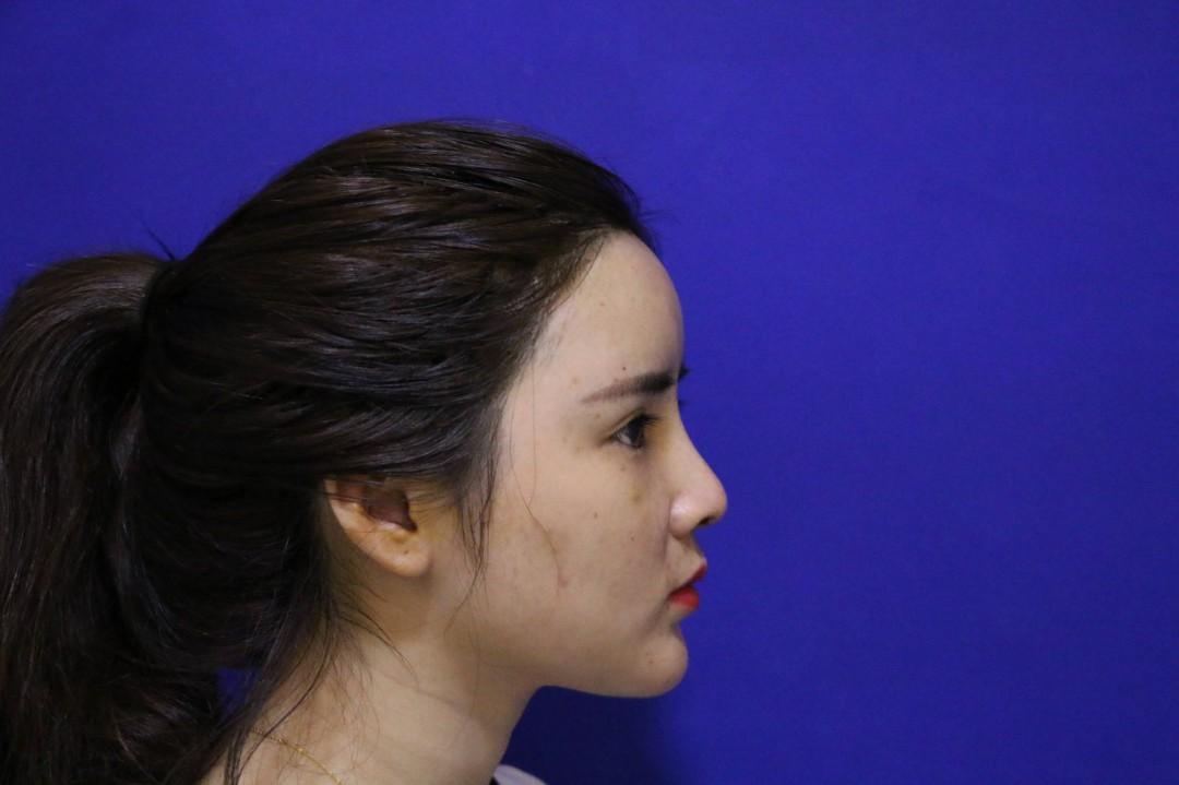 如何收缩面部毛孔 什么是毛孔