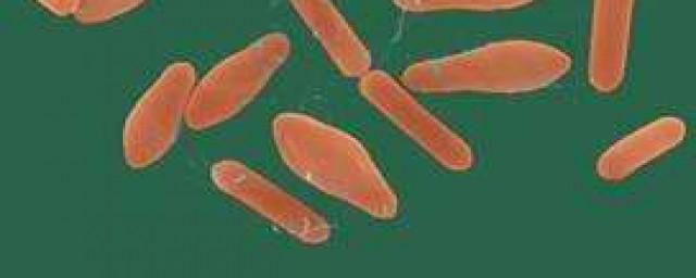 谷氨酸棒状杆菌呼吸类型 谷氨酸棒状杆菌呼吸类型是有氧呼吸