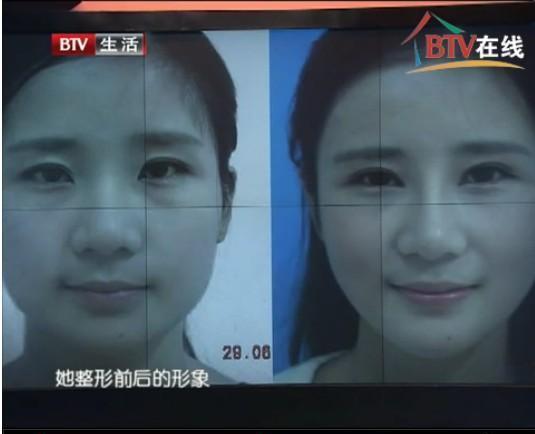 中国整形整容第一狂人 美女把乳房都切了【有意思】