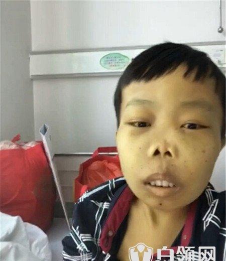 星热点:陈山病情最新消息曝光 yy外星人陈山病重随时都会死亡