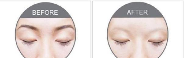 激光洗眉仪器操作流程及洗眉机注意事项