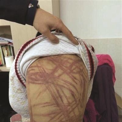 南京虐童案今天开审,被控故意伤害养母坚持不认罪