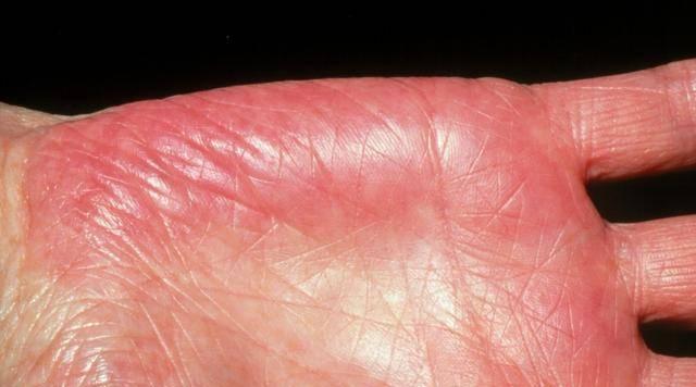 肝掌——肝脏中毒已深的四种征兆
