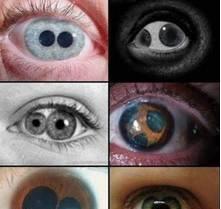 常识·这个世界上真的有双瞳人吗