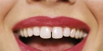 5个方法解决牙齿缝隙大