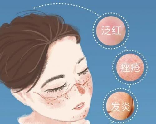 爆痘、过敏都是戴口罩惹的祸?深圳皮肤科医生实验后公布真相