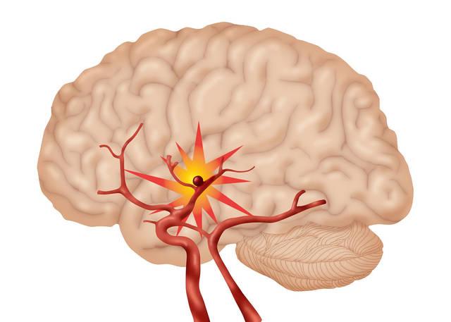 脑血管硬化早期会有这四种表现,医生说这三类人一定要重视!