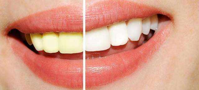 牙齿发黄怎么解决?介绍几个妙招