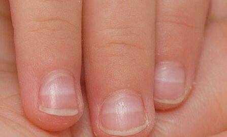 手指甲有白点暗示这4种疾病,很多人都不知道。