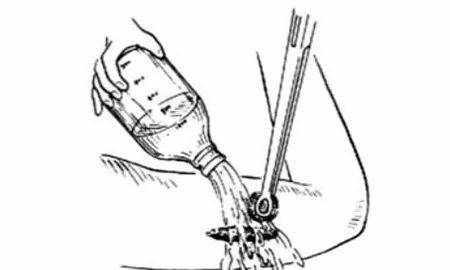 世界最早的清创手术