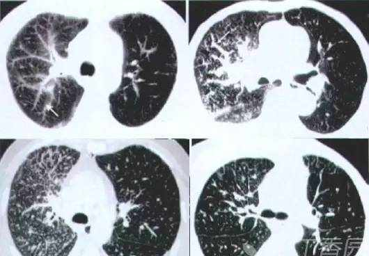 熟记这些 CT 表现,一眼识破转移性肺癌