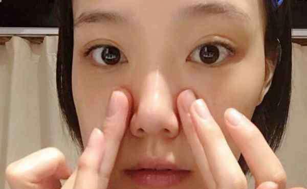 怎么清理毛孔 自己在家怎么清洁毛孔 和黑头粉刺说再见