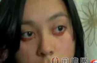 泪血症 泪血症是怎么回事  泪血症致妙龄女流血不止