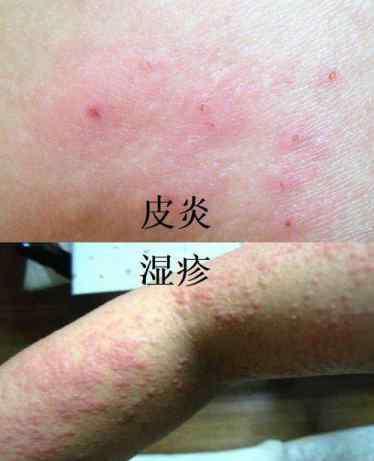什么药治湿疹最好 湿疹和皮炎的区别图,皮炎和湿疹用什么药治疗比较好