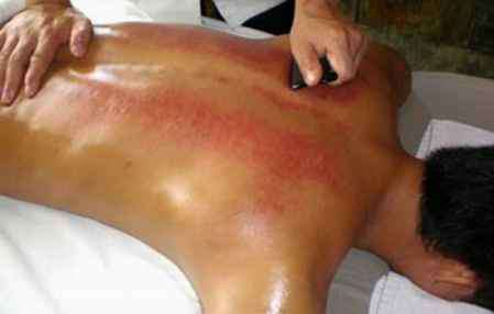 刮痧后背部颜色判断 刮痧后背部颜色判断  从不同颜色看健康