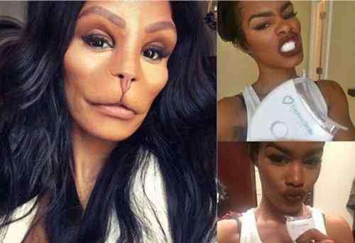名媛整容成猴脸 美国名媛整容成猴脸脸部整形并发症和后遗症不少
