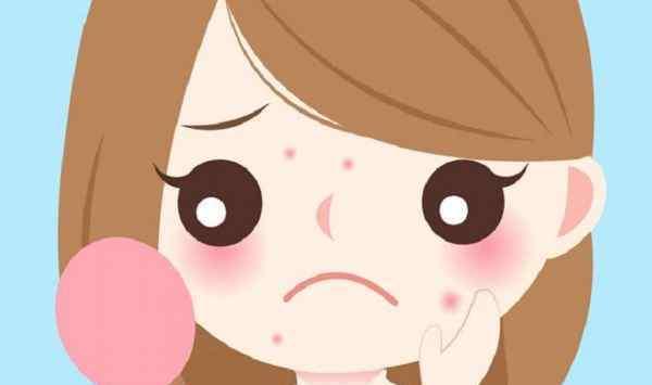 痘印和痘坑的区别 痘印为什么会变黑 红痘印和黑痘印有什么区别