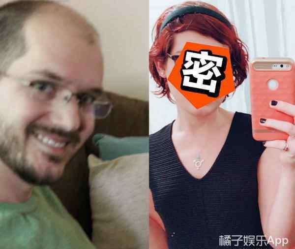 男性服用雌激素 秃头男子连续服用雌性激素一年,现在长这样